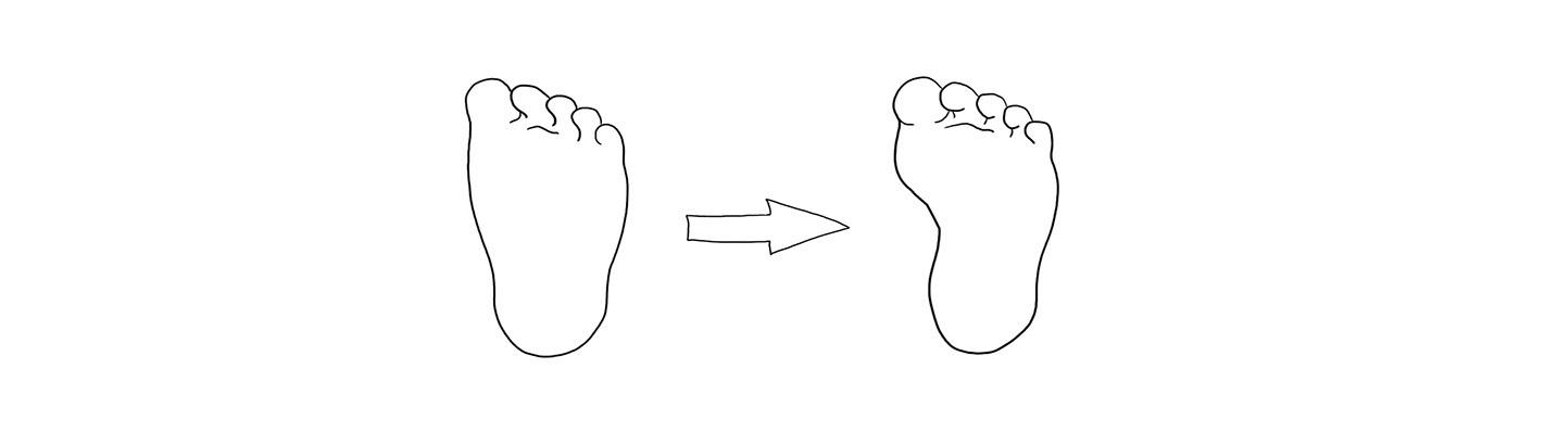 Little children seem to have flat feet