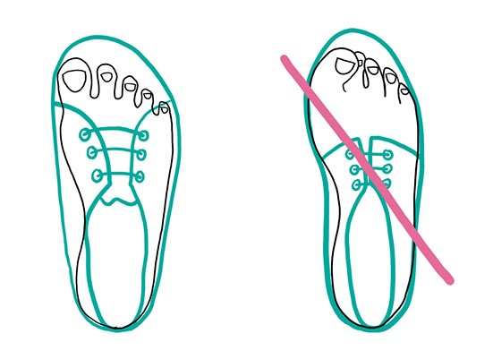 Too narrow shoe tips can lead to toe deformities